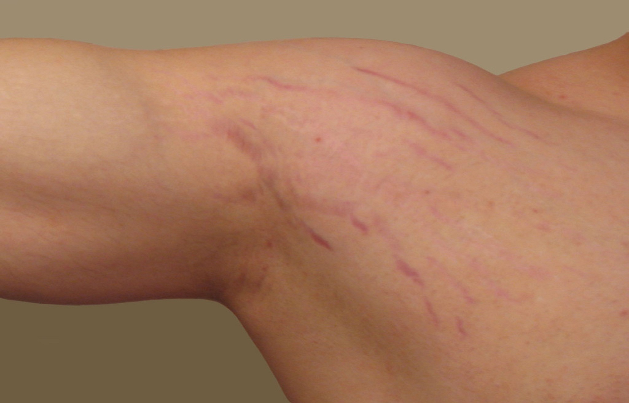 Discover What You Don't Know Stretch Marks Treatment Cost That Could Save A Fortune