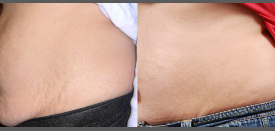 stretch marks treatment cost